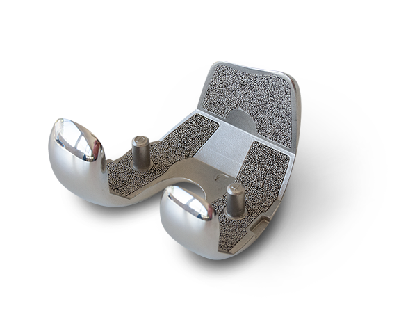 Implante con recubrimiento poroso