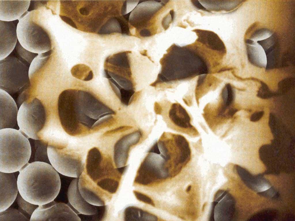 Visión microscópica real de la osteointegración